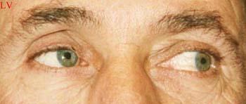 Prothèse oculaire corail