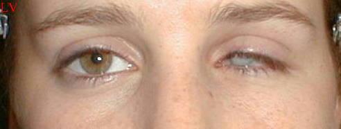 Oeil gauche perdu (traumatisme)