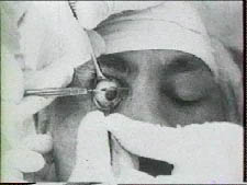 Pr Ignacio Barraquer et opération de cataracte
