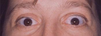 Rétraction palpébrale supérieure bilatérale assymétrique au cours d'une maladie de Basedow
