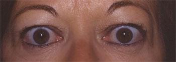 Rétraction palpébrale supérieure bilatérale avec lipoptose au cours d'une maladie de Basedow