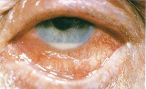 Hypopion: niveau horizontal blanchatre dans la chambre anterieure