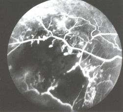 Maladie de Coats Angiographie