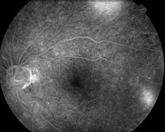 diabète oculaire