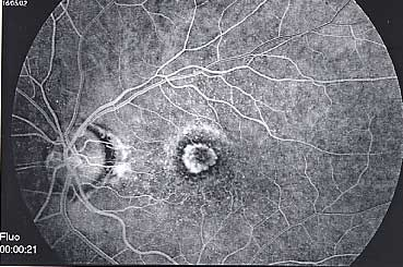Membrane néovasculaire
