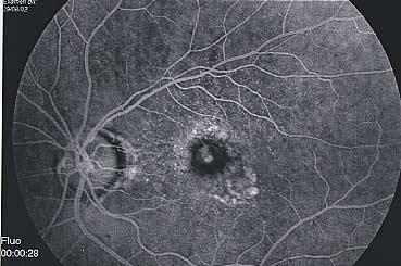 Assèchement de la membrane néovasculaire
