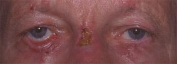 Ectropion cicatriciel de la paupière inférieure droite