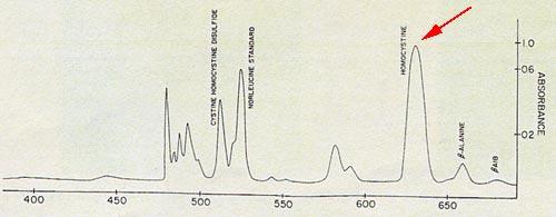 Electrophorèse : Pic d'homocystéine