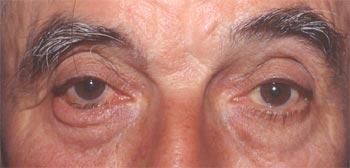Entropion involutif Fixation des rétracteurs à la peau...