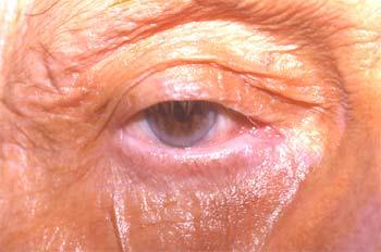 Entropion cicatriciel paupière supérieure