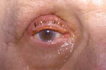Recul de la lamelle antérieure et marginoplastie (J15)