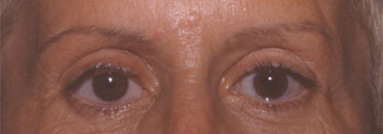 Enucléation et prothèse oculaire