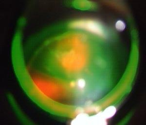 Les impacts de laser vert