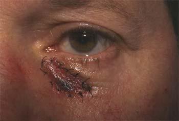 Greffe de peau totale rétro-auriculaire
