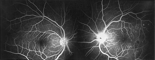 Harada angiography