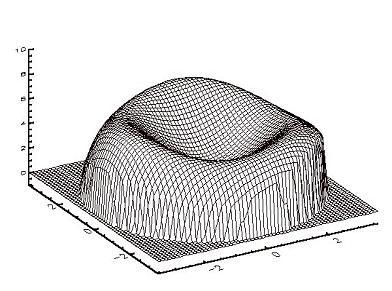 Aberration de haut grade d'un oeil myope