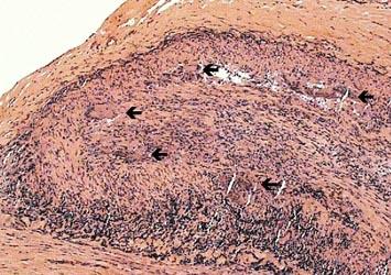 Maladie de Horton (cellules géantes)