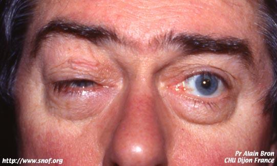 Ptosis de la maladie de Kearns-Sayre