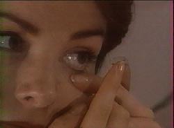 Pose d'une lentille cornéenne
