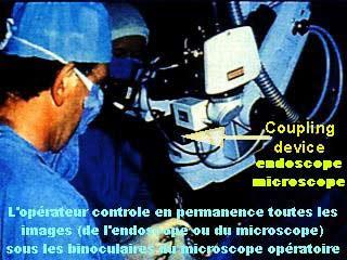 Opérateur utilisant l'endoscopie oculaire