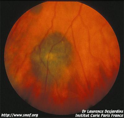Maladies de la choro de maladies choroidiennes - Couche du globe oculaire ...