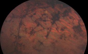 rétinopathie pigmentaire