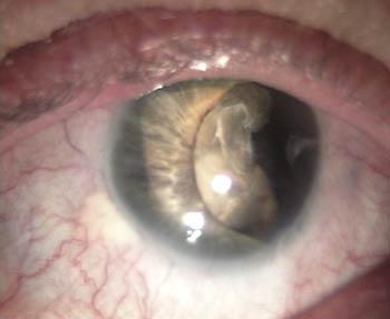 traumatisme oculaire item