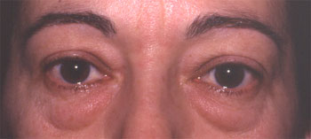 Lipoptose supérieure et inférieure bilatérale