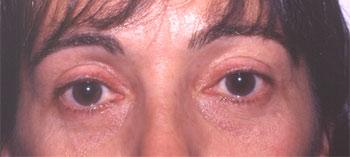 Blépharoplastie supérieure et lipectomie inférieure par voie conjonctivale