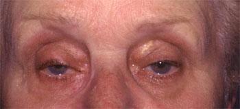 Ptosis involutif bilatéral, lipoptose médiale et dermatochalasis