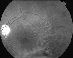 fond de l'oeil rétinoschisis