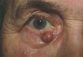 Carcinome basocellulaire de la paupière inférieure