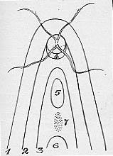 Ida Mann (Schéma des colobomes)