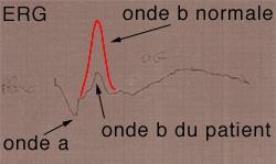 Electrorétinogramme