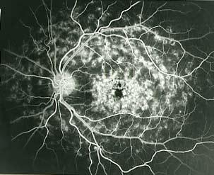 Maladie de Stargardt Angiographie