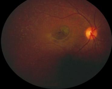 Forme maculaire de maladie de Stargardt