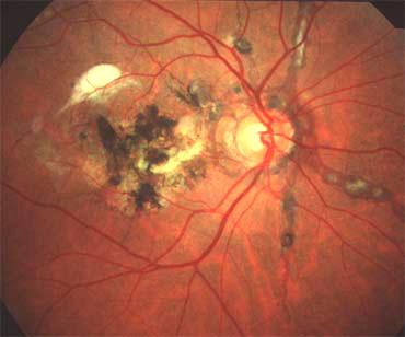Stries angioïdes et lésion maculaire sévère