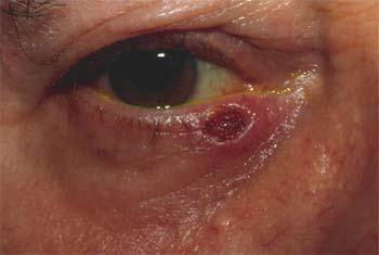 Exérèse de la tumeur