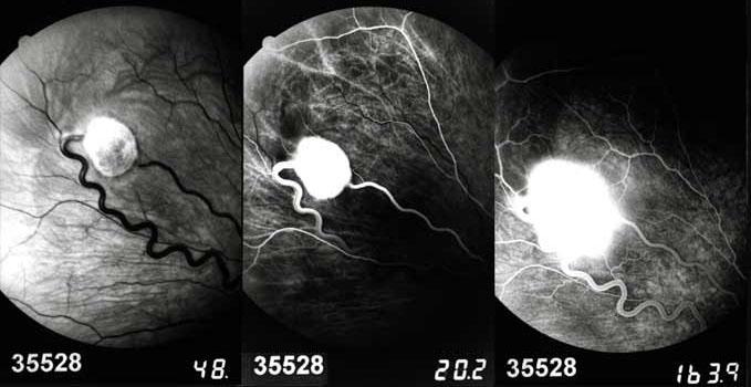 Hémangioblastome périphérique
